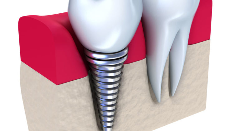 Teeth Implants: The Last Stage of Periodontitis Treatment