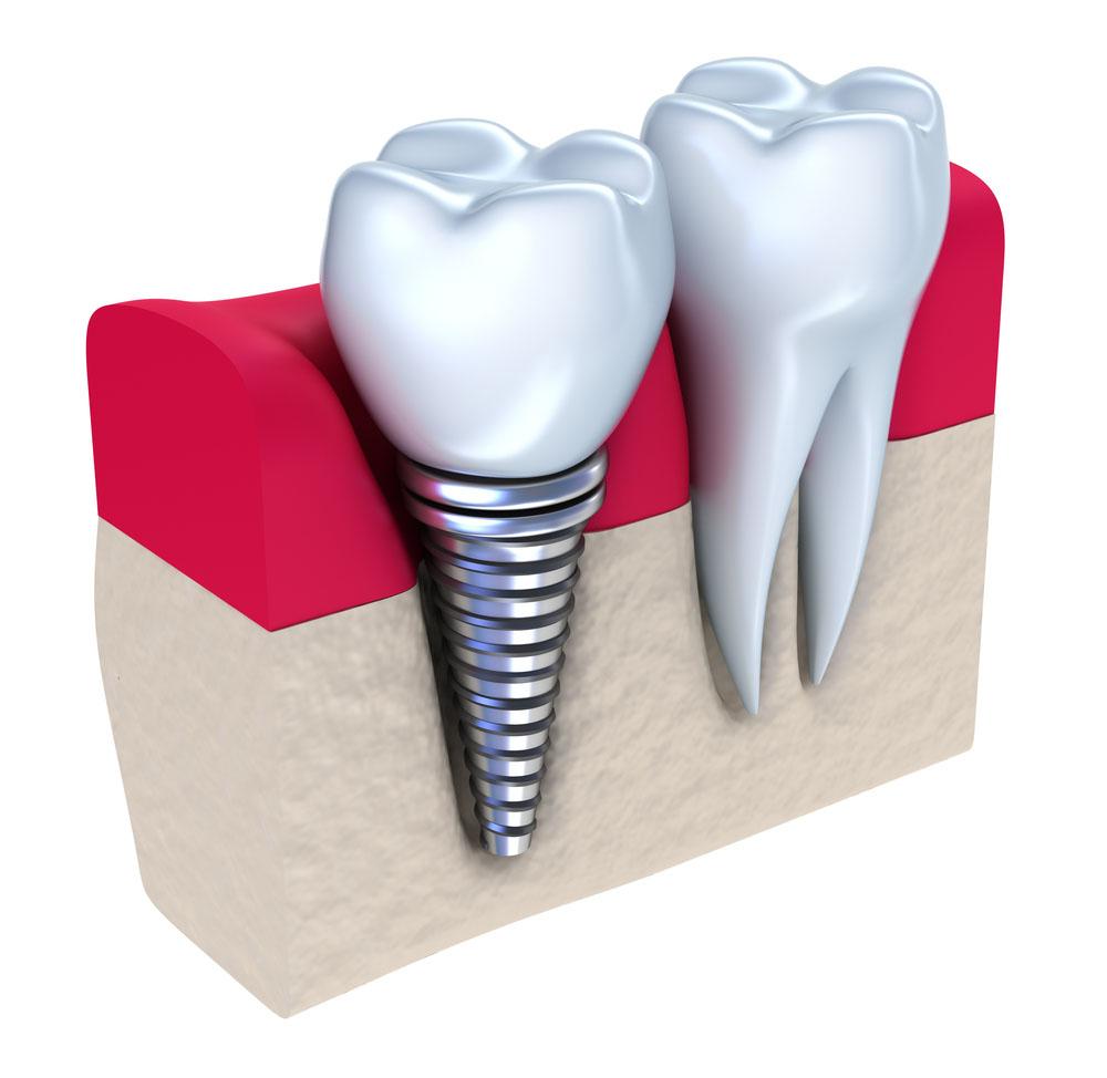 Teeth Implants: The Last Stage of Periodontitis Treatment